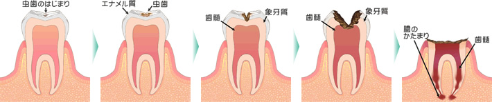むし歯進行状態